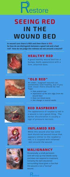 7 best wounds nursing images