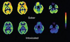 Even moderate drinking can cause memory loss and depression - kodoom.