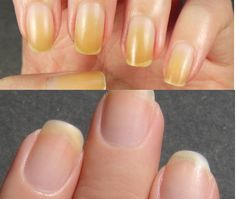 It is a common thing for your nails to get all yellow due to the usual manicure. You probably already noticed there is nothing different even if you use top