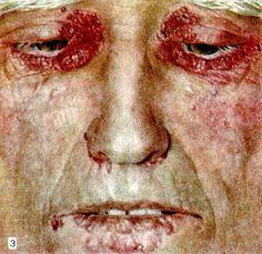 кожные заболевания передающиеся половым путем