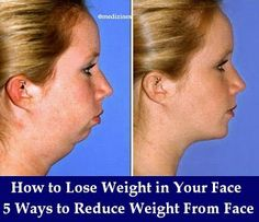 How to Lose Weight in Your Face - 5 Ways to Reduce Weight From Face Quickly!