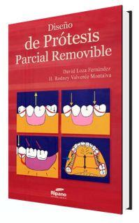 Diseño de Protesis Parcial Removible – David Loza Fernandez ~ Comunidad Odontológica