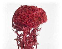 Невероятно густая сеть сосудов головного мозга и шеи.
