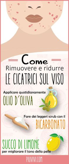 Come Rimuovere E Ridurre Le Cicatrici E Gli Inestetismi Sul Viso Usando Olio D'O. How to remove and reduce scars and blemishes on the face using olive oil, sodium bicarbonate and freshly squeezed le Putting On Makeup, Oily Hair, Healthy Nails, Fake Eyelashes, Beauty Hacks, Beauty Tips, Diy Beauty, Beauty Care, Homemade Beauty