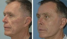 Looking Younger Without End: Men Can Use Face Aerobics Exercises For Eternal Youth