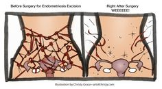 Endometriosis Excision Before and After Art of Christy Grace: Second Endo Surgery - Adhesion Removal