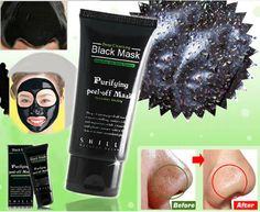 DBT - Health and beauty: Black Head Acne Treatments Face Mask Price €8.65 f...
