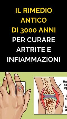 The ancient Indian remedy that treats inflammation and arthritis .- L'antico rimedio indiano che cura le infiammazioni e l'artrite reumatoide The 3000 year old remedy to treat arthritis and inflammation - Health And Nutrition, Health And Wellness, Health Fitness, Arthritis, Water Retention Remedies, Alternative Therapies, Healthy Skin Care, Wellness Tips, Good To Know