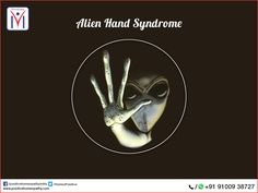 ‪#‎AlienHandSyndrome‬. Patients feel that their limbs behave like aliens and have a mind of their own!