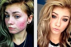 18 Insane Acne Transformations That Prove The Power Of Makeup. This is awesome many different skin tones are shown as well so if you struggle with acne this should be a great selection no matter who you are