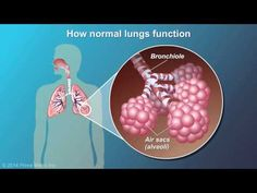 This animation describes the causes, risk factors and common symptoms of chronic obstructive pulmonary disease (COPD), as well as how lungs with COPD . Disability Application, Respiratory System, Respiratory Therapy, Asthma Remedies, Natural Health Tips, Chronic Illness, Lunges, Helpful Hints, Medical Marijuana