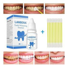 "Universe of goods - Buy ""LANBENA Teeth Whitening Essence Powder Oral Hygiene Cleaning Serum Removes Plaque Stains Tooth Bleaching Dental Tools Toothpaste"" for only USD. Smile Teeth, Teeth Care, Dental Teeth, Dental Care, Remover Manchas, Veneers Teeth, Tooth Powder, Gifts For Dentist, Stained Teeth"