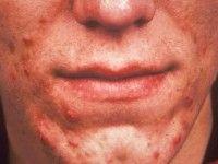 WAT ZIJN DE VERSCHIJNSELEN? #Acne #vulgaris