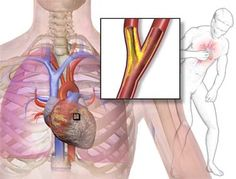 Bulgarian Home Remedies For Angina Pectoris   #naturalhealing #healthyliving #naturalhealth #healthy #homeremedies #natural #naturalremedies #herbalremedies #naturalcures #holistic #holistichealing #healthtips #herbalist #healthcoach    Like and Share or Tag a friend who would like to read this!     To read full article visit http://www.europeanhomeremedies.com/2016/03/03/bulgarian-home-remedies-for-angina-pectoris/