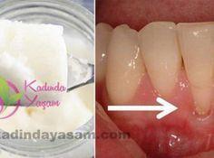 Hindistan cevizi yağı ile bütün diş ve diş eti hastalıklarına veda edin