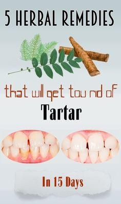 5 herbal remedies that will get tou rid of tartar in 15 days – My Blog