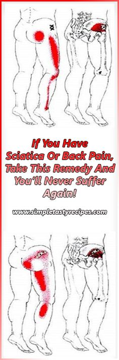 If You Have Sciatica Or Back Pain, Take This Remedy And You'll Never Suffer Again