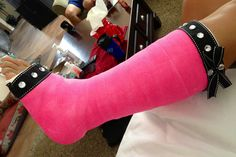 My new bling pink cast. Decorated leg cast.