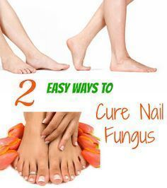Easiest Way To Fight Nail Fungus (click on the image, and then click again to get to the link) #ToenailFungusPeople