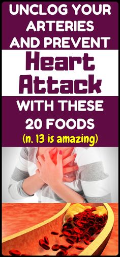 20 Foods That Can Help Unclog Your Arteries And Fight Bad Cholesterol - better health Health Tips For Women, Health Advice, Health And Wellness, Health Fitness, Health Care, Fitness Tips, Health Diet, Izu, Home Beauty Tips