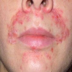 Natural Remedies For Seborrhoeic Dermatitis