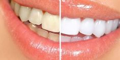 Top Oral Health Advice To Keep Your Teeth Healthy. The smile on your face is what people first notice about you, so caring for your teeth is very important. Unluckily, picking the best dental care tips migh Zoom Teeth Whitening, Charcoal Teeth Whitening, Natural Teeth Whitening, Whitening Kit, Invisalign, Baking Soda Health, White Teeth, Cosmetic Dentistry, Teeth Cleaning