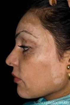 Resultado de imagem para vitiligo fotos inicio doença