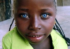 Waardenburg syndrome is a group of genetic conditions. It can cause hearing loss and changes in color (pigmentation) of the hair, skin, and eyes. Black With Blue Eyes, People With Blue Eyes, Green Eyes, Black People, Blue Eyed People, Lil Black, Pretty Eyes, Cool Eyes, Behind Blue Eyes