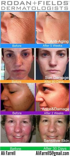 Get rid of pimples, pores, wrinkles and redness! Rodan and fields has a regimen for all these skin issues! Visit http://dmusielewicz.myrandf.com