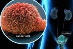 14 Cancer-Causing Foods You Should Never Put in Your Mouth Again!