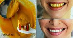 Natural homemade toothpaste that can heal cavities, gum disease, and whiten teeth! Tooth staining or discoloration is a common cosmetic .