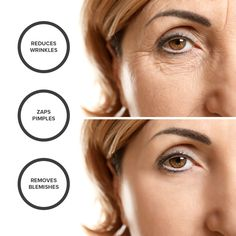 46 Best Radio Frequency Skin Tightening images in 2013