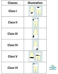 Must-know classifications of dental caries for the national dental hygiene boards - DentistryIQ Dental Assistant Study, Dental Hygiene Student, Dental Humor, Dental Hygienist, Rda Dental, Dental World, Dental Life, Dental Health, Oral Health