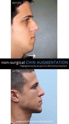 Penetration Gyneco Photos
