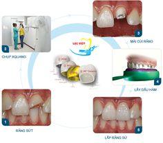 Quy trình Bọc răng sứ Cercon tại nha khoa Lạc Việt
