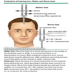 """Evaluation of Hearing Loss -""""Weber and Rinne Tests"""" (Very good explanation) #ear…"""