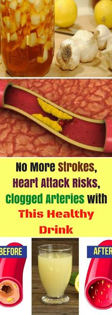 No More Strokes, Heart Attack Risks, Clogged Arteries with This Healthy Drink