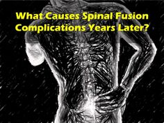 Do you regret the decision of spinal fusion due to post-op spinal fusion complications? Have you heard about the risk factors causing spinal fusion complications years later? This article is all about the problems after spinal fusion surgery.