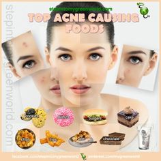 ☛ Beauty comes from within.  There is mounting evidence on the relationship of foods and and skin health.  FOR THE STUDY AND ALL YOU NEED TO KNOW:  http://www.stepintomygreenworld.com/greenliving/greenfoods/the-relationship-of-heavy-foods-and-acne/  ✒ Share | Like | Re-pin | Comment