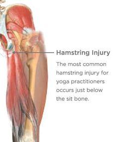 Healing (or Preventing) Hamstring Injuries Hamstring Pull, Hamstring Muscles, Hamstring Stretches, Yoga Exercises, Hamstring Injury Treatment, Tendon Tear, Tight Hamstrings, Glutes, Yoga International