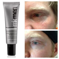 MKMen Advanced Eye Cream. This advanced formula immediately hydrates and helps to firm the look of skin around the eyes as it dramatically minimizes the appearance of fine lines and wrinkles. •Features a lightweight, oil-free formula. •Contains skin conditioners. This is after 5 weeks. Wrinkles are fading away! Before and After Pictures are Unedited!