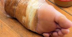 jak vyléčit puchýř na noze rychle