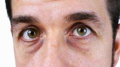كيف تتخلص من الهالات السوداء تحت العين بطريقة طبيعية - مضمونة 100%