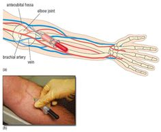 Phlebotomy what are major