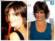 20 Celebrities Who DESTROYED their Looks with Plastic Surgery | Juicy Celeb – Celebrity Gossip, Rumors