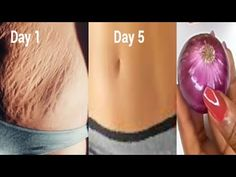 Simple Skin Care Tips To Slow Aging And Wrinkles - Sassy Ladies Beauty Bar Stretch Marks On Legs, Reduce Stretch Marks, Stretch Mark Remedies, Stretch Mark Removal, Beauty Skin, Health And Beauty, Combattre La Cellulite, Tips Belleza, Diy Skin Care