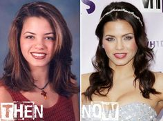 Jenna Dewan Tatum plastic surgery before & after