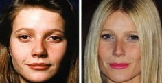 Gwyneth Paltrow Plastic Surgery Before and After - she needs a new personality t. - - Gwyneth Paltrow Plastic Surgery Before and After – she needs a new personality too! Fake from head to toe! Gwyneth Paltrow, Bad Plastic Surgeries, Plastic Surgery Gone Wrong, Bulbous Nose, Celebrities Before And After, Celebrity Plastic Surgery, Cosmetic Procedures, No Photoshop, Without Makeup