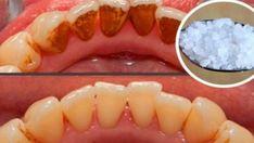 Un dentist s-a dat de gol si i-a spus pacientului cu ce trebuie sa-si clateasca gura pentru a scapa de tartru! Secretul pe care dentistii il tin doar pentru ei…