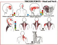 Neck Pain | GadiBody.com | Neuromuscular Therapy - Strain Counterstrain Pain Relief - Los Angeles, Santa Monica CA